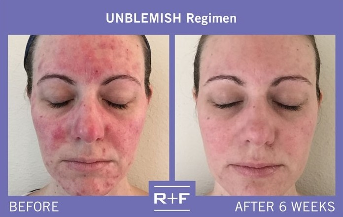 800x800_1470335151753 real results unblemish