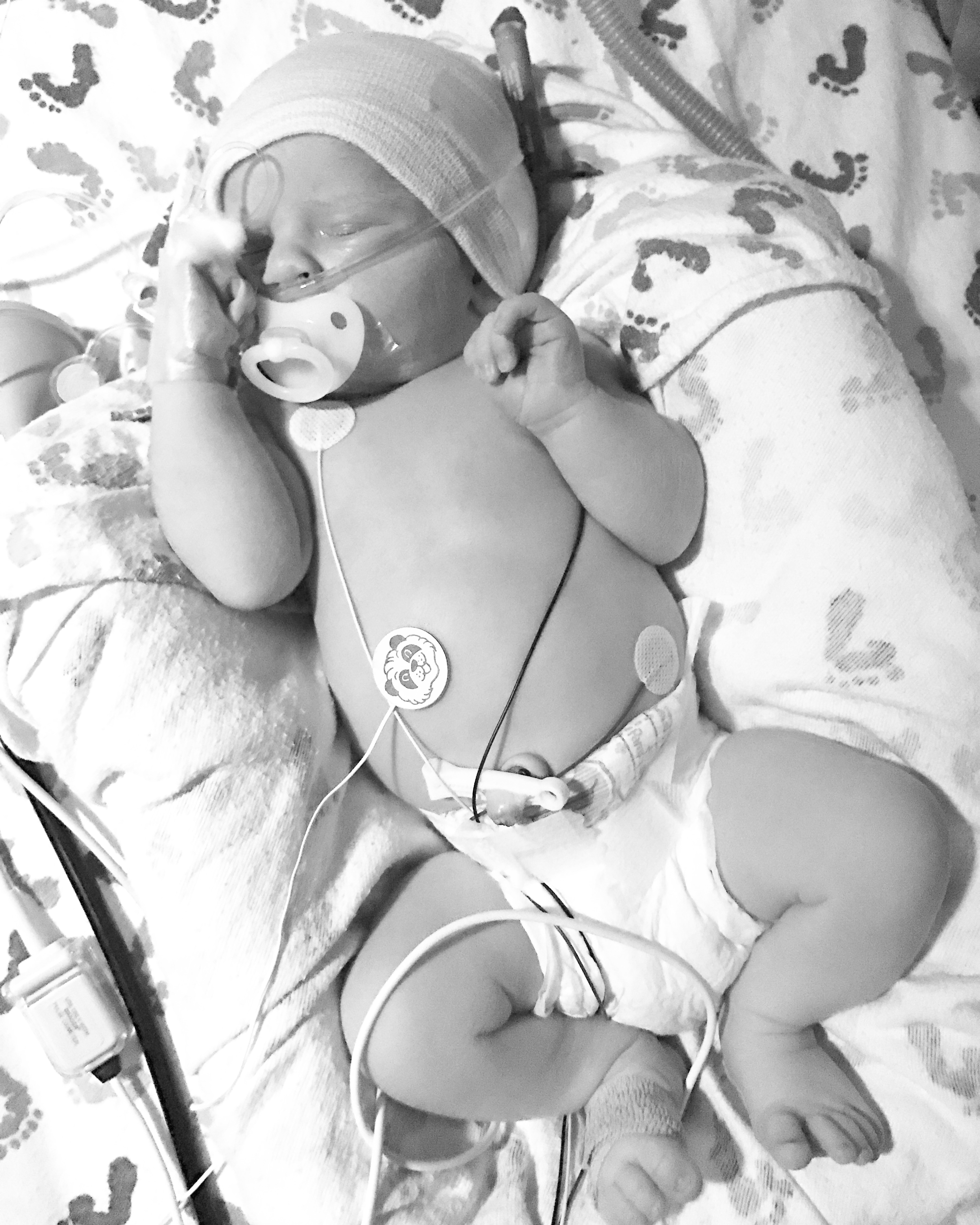 Our baby max was born!! (…and in the nicu for now)